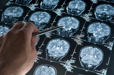 Os movimentos autônomos do cérebro
